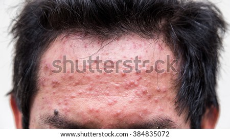 closeup a man  forehead  who having varicella blister or chickenpox  - stock photo
