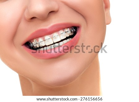 Closeup Beautiful Female Smile with Transparent Ceramic and Metal Braces on Teeth. Orthodontic Treatment. - stock photo