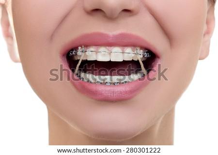 Closeup Braces on Teeth with Elastics. Orthodontic Treatment. Front View Dental Brackes. - stock photo