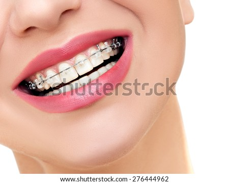 Closeup Braces on Teeth. Woman Smile with Orthodontic Braces. - stock photo
