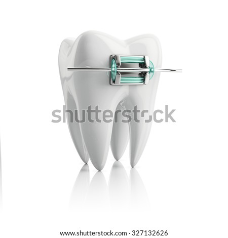 closeup metal bracket on tooth, concept training fragment, isolated on white background - stock photo