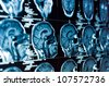 Closeup of a CT scan with brain and skull on it - stock photo