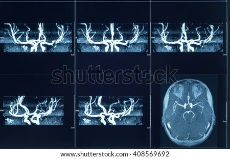 Closeup of a CT scan with brain and the cerebral vessels. - stock photo