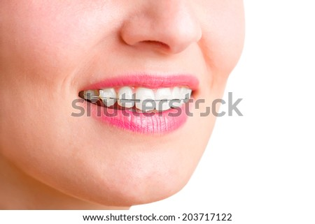 Closeup of a mouth with braces on teeth and the tongue out, isolated in green - stock photo