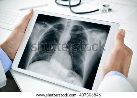 closeup of a young caucasian doctor man sitting at his office desk observing a chest radiograph in a tablet computer - stock photo