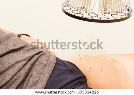 Closeup of acupuncture patient being treated with needles on thigh area and infrared heat lamp - stock photo