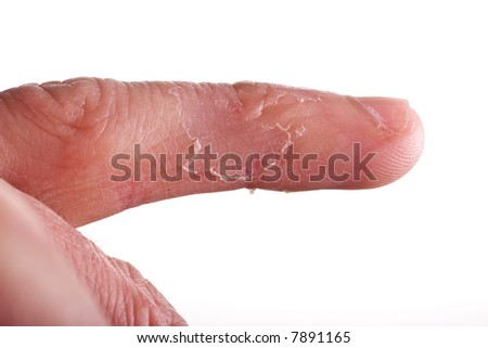 closeup of eczema on male finger with skin peeling
