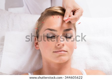 Closeup of hand performing acupuncture therapy on patient's head at salon - stock photo