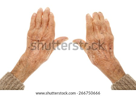 Closeup of hands with artritis of an old farmer man - stock photo