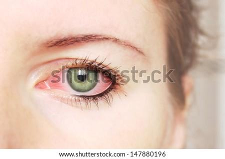 Closeup of irritated red bloodshot eye - conjunctivitis - stock photo