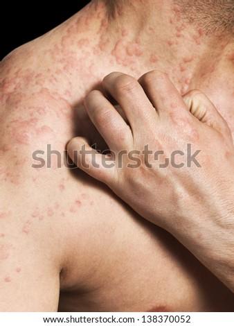 Closeup of man scratching allergic skin - stock photo