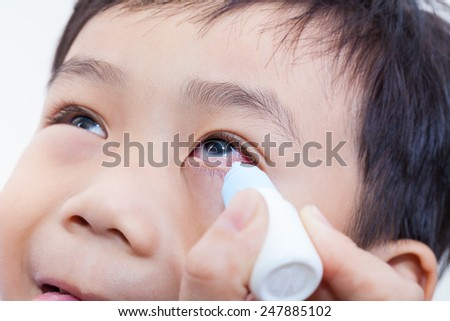 Closeup of parent pouring eye drops in eye her son (conjunctivitis) - stock photo