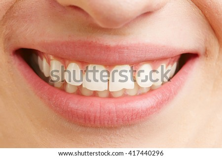 Closeup of smiling mouth of a woman with white teeth