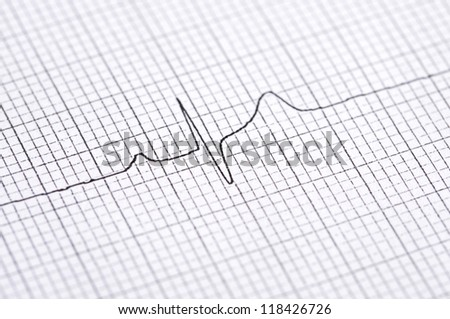 Closeup of twelve lead electrocardiogram graph showing ventrical activation time and amplitude - stock photo