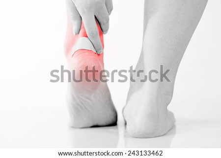 Closeup of woman's heel with blister plaster on, Women's problems - stock photo