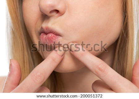 Closeup on teenager poping pimple - stock photo