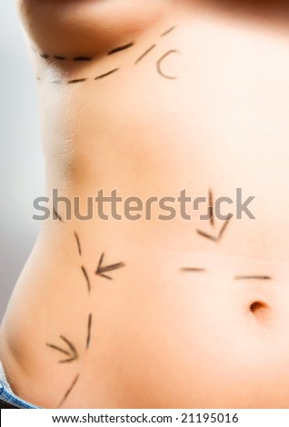 Closeup photo of a Caucasian woman's breasts marked with lines for breast augmentation and abdominal cosmetic surgeries - stock photo