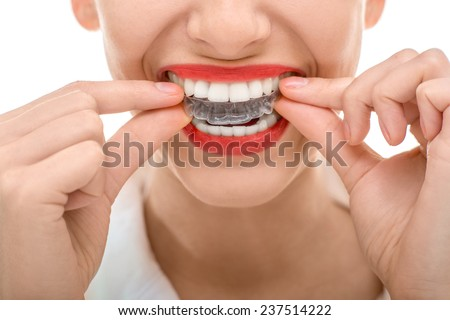 Closeup portrait of charming woman wearing orthodontic silicone trainer - stock photo