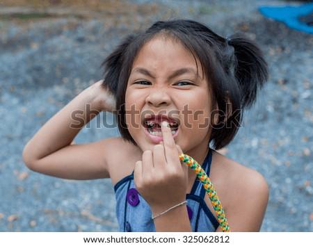 Closeup smiling little asian girl with a broken teeth - stock photo