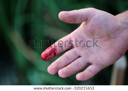 cut finger how to stop bleeding
