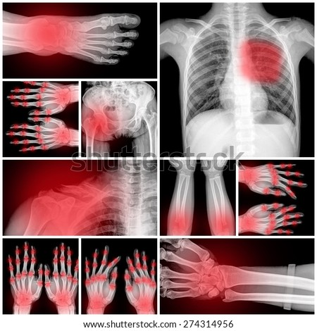 Collage of many X-rays. Very good quality - stock photo