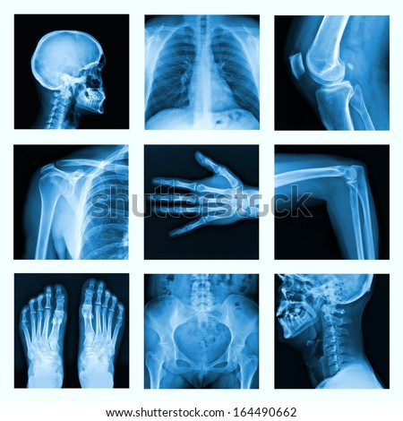 Collage of many X-rays. Very good quality / Many others X-ray images in my portfolio.  - stock photo