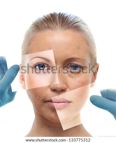 Collage with woman's portrait and hands in medical gloves isolated on white. Beauty treatment concept. - stock photo