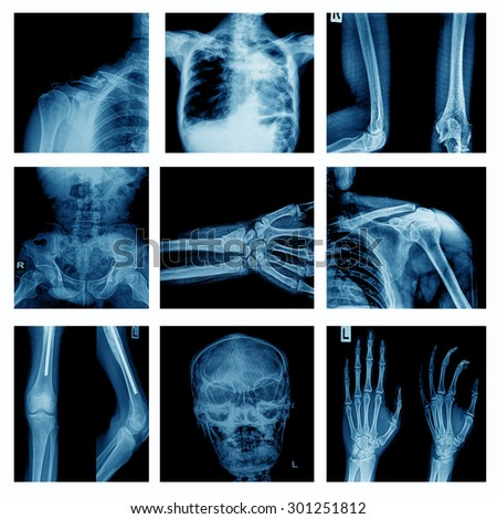 Collection human joint and arthritis and stroke  - stock photo