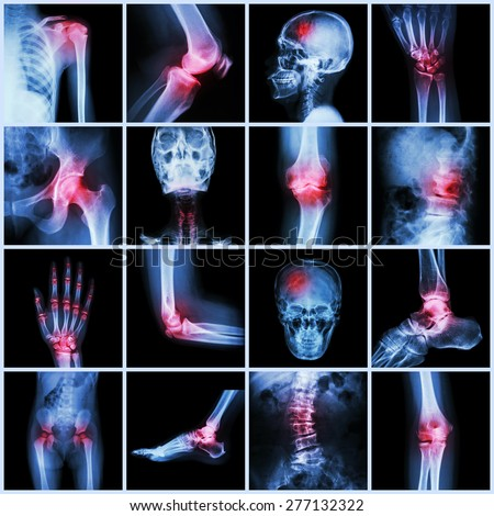 Collection human joint and arthritis and stroke ( skull head neck shoulder chest thorax shoulder arm elbow forearm wrist hand finger palm spine back pelvis thigh knee leg foot ankle toe) - stock photo