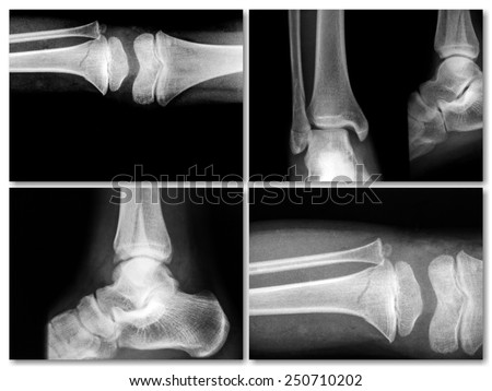 collection of film x-ray image of broken leg and foot