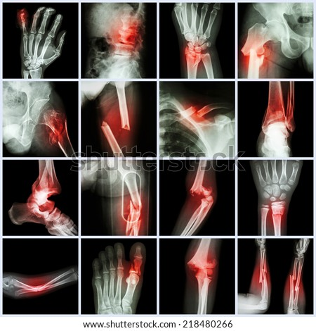Collection X-ray multiple bone fracture (finger,spine,wrist,hip,leg,clavicle,ankle,elbow,arm,foot) - stock photo