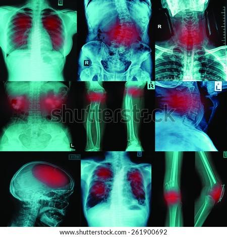 Collection x-ray multiple disease (arthritis,stroke,brain tumor,gout,rheumatoid,kidney stone,pulmonary tuberculosis,osteoarthritis knee, etc) - stock photo