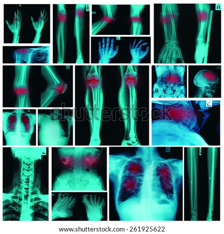 Collection X-ray multiple organ and arthritis at multiple joint (Rheumatoid,Gout) - stock photo