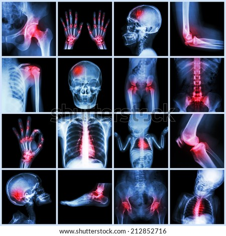 Collection X-ray multiple part of human and Arthritis,multiple disease (Gout , Rheumatoid,congenital heart disease,stroke) - stock photo