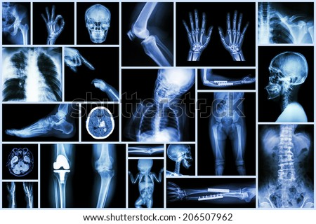 Collection X-ray multiple part of human & Orthopedic surgery & Multiple disease (Osteoarthritis knee,spondylosis,Stroke,Fracture bone,Pulmonary tuberculosis, etc) - stock photo
