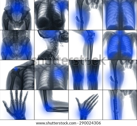 Collection X-ray multiple part of human , painful , isolated on white background - stock photo