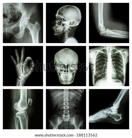 Collection X-ray part of human