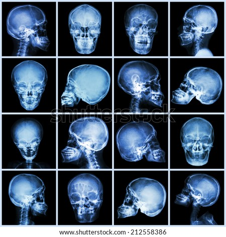Collection x-ray skull (asian people) - stock photo