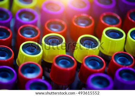 Colorful Test tube with blood in laboratory. Selective focus
