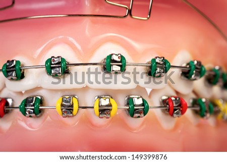 Coloured denture with braces - stock photo