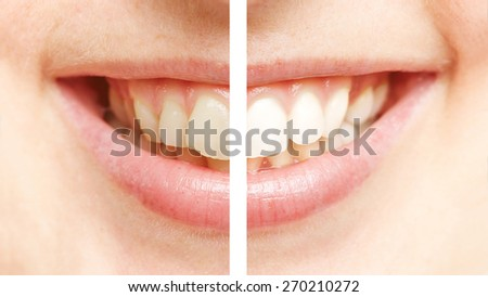Teeth Whitening Comparison Comparison Between White Teeth