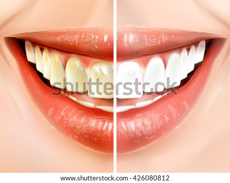 comparison of oral hygiene 3D illustration- pearly white teeth and dirty teeth