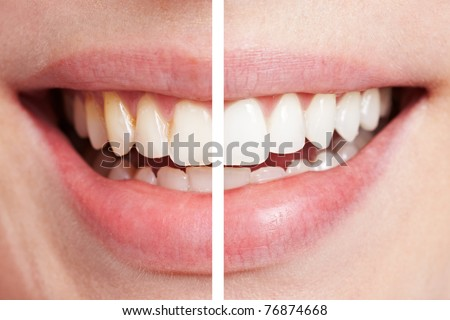 Comparison of teeth before and after bleaching session - stock photo