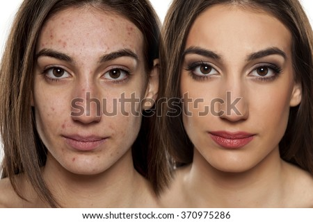 Comparison portrait of a woman with problematic skin without and with makeup - stock photo
