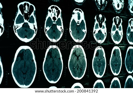 Computerized tomography (CT) scan of brain