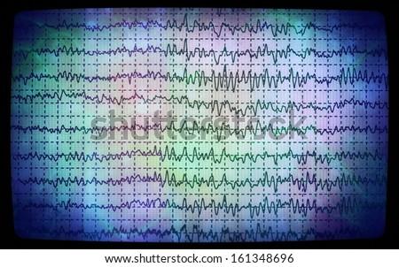 concept graph brain wave EEG, monitor - stock photo