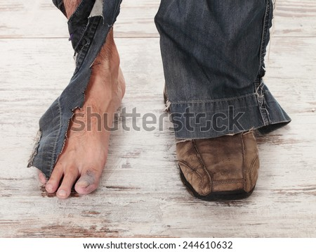 concept of a poor person and his feets - stock photo