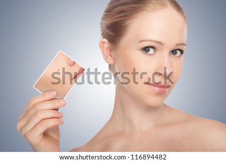 concept skincare . Skin of beauty young woman before and after the procedure  on a gray background - stock photo