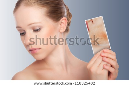 concept skincare . Skin of beauty young woman with redness, skin problems, acne, rashes, burns on a gray background - stock photo