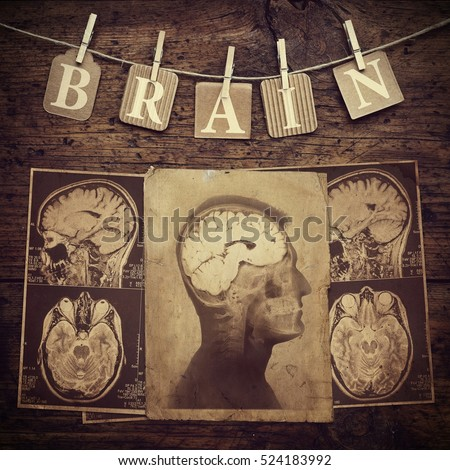 Conceptual image on the brain theme. Retro style.